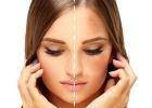 hyperpigmentácia, prevencia, flaky, flaky na tvári, flaky na koži, kožné flaky, škrvny na koži, pigmentové škvrny, melasma