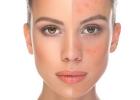 rosacea, roselaine, koža, pokožka, stav, problémy, riešenie, krém, starostlivosť, aký krém použiť, pomoc, rady, tipy, zdravie, pleť, tvár, začervenanie, červená, škvrny