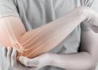 OSTEOPORÓZA: Posilnite svoje kosti!