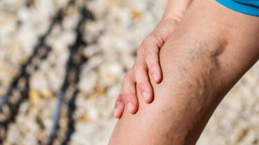 Kŕčové žily: Môžu za to podpätky?