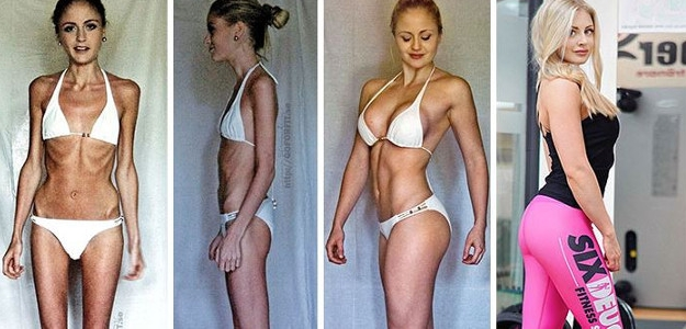Bojovníci, ktorí zvíťazili nad anorexiou