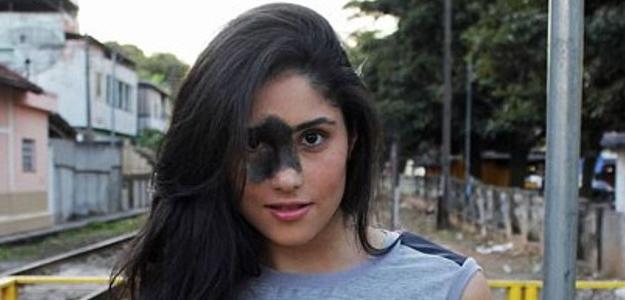 Hovorili jej, že je škaredá, kvôli tomuto znamienku na tvári. Pozrite, čo s tým spravila.