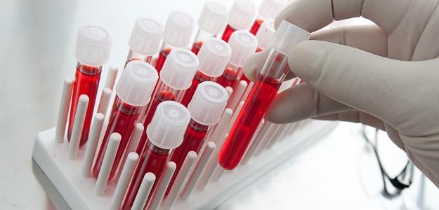 Prepojenie stresu s krvnými skupinami