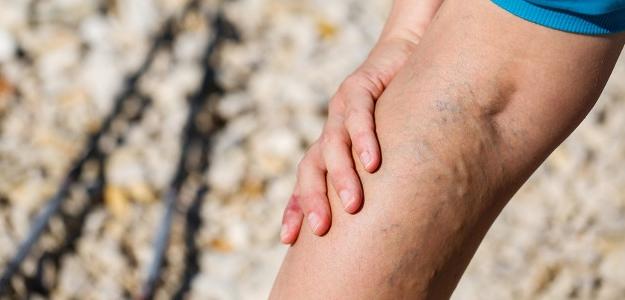 Kŕčové žily – môžu za to podpätky?