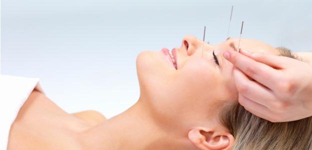 Akupunktúra – tradičná čínska medicína. Čoraz populárnejšia?